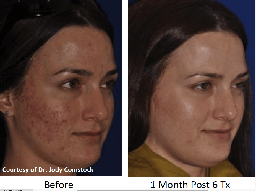 before-after-micro-needling-for-acne