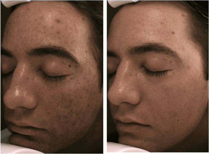 ba-micro-needling-face-with-prp