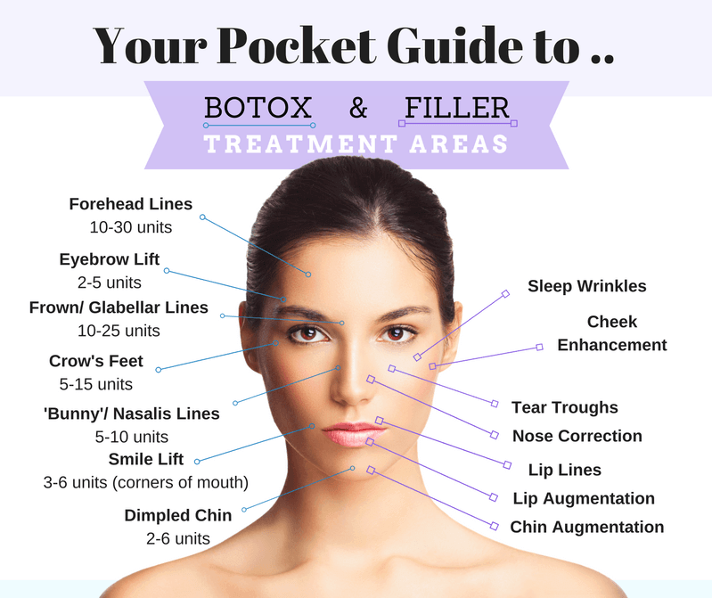botox and filler treatment areas map. Forehead lines, eyebrow lift, frown glabellar lines, crows feet, dimpled chin, smile lift, sleep wrinkles, cheek enhancement, tear troughs, nose corretion, lip lines, lip augmentation, chin augmentation