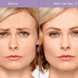 woman before and after botox and fillers