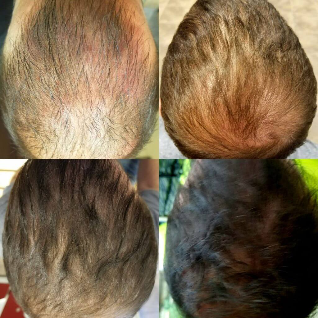 Hair Restoration with PRP Platelet Rich Plasma Stem Cell Treatments