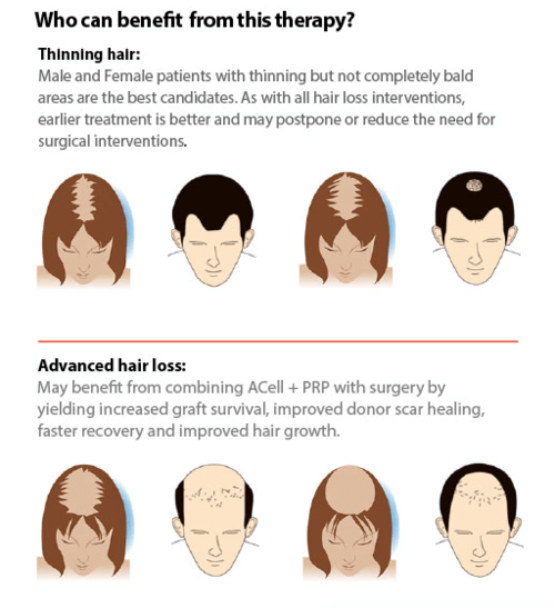 hair-loss-image-graphic