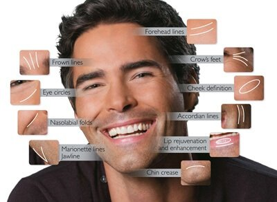 Brotox Botox for Men Forehead lines, frown lines, crows feet, Jawline, cheeks