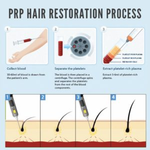 prp-hair-restoration-process