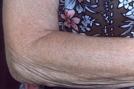 arm-after-environ-skin-care-products