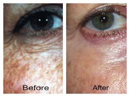 environ-skin-care-before-after