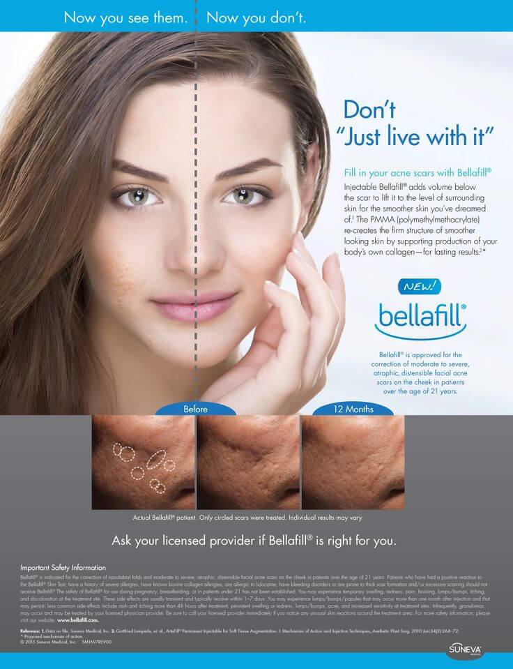 bellafill-acne-improvement-info-graphic