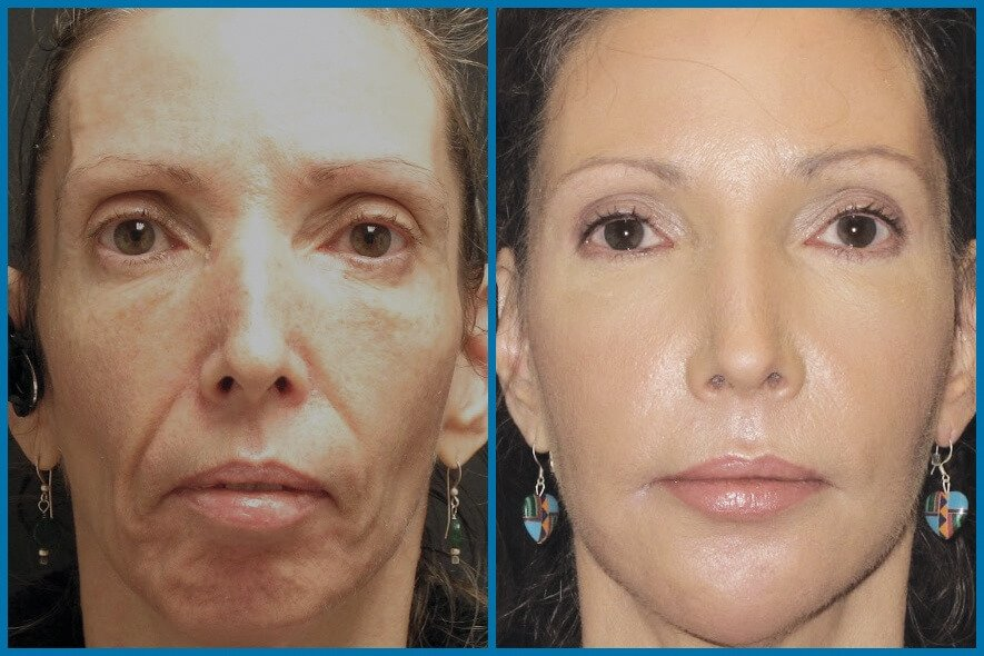 bellafill-facial-contouring-sarasota-medspa