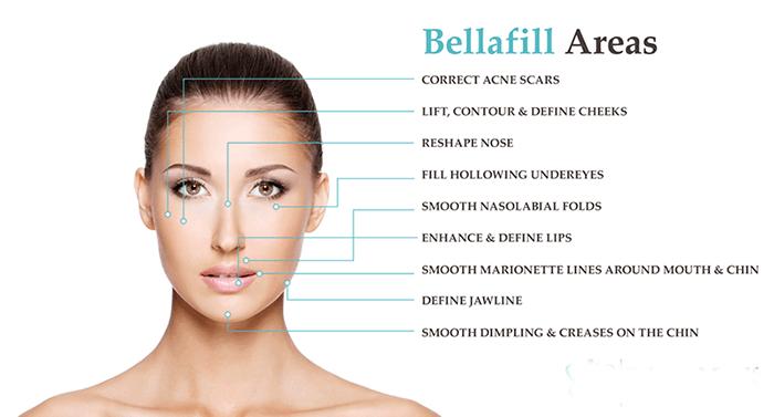 bellafill-area-map-face