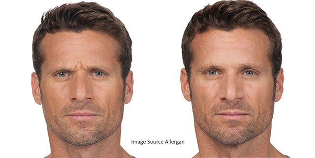 botox®-brotox-men-before-after