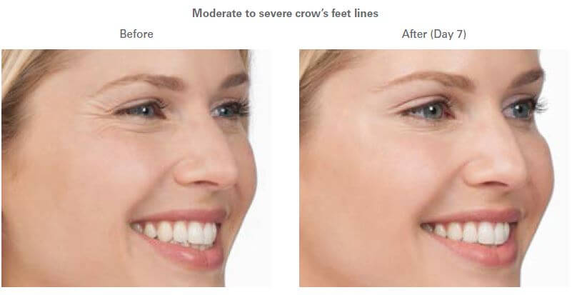 botox®-before-after