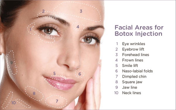 botox®-injection-areas