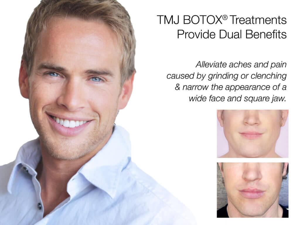 botox®-brotox-men