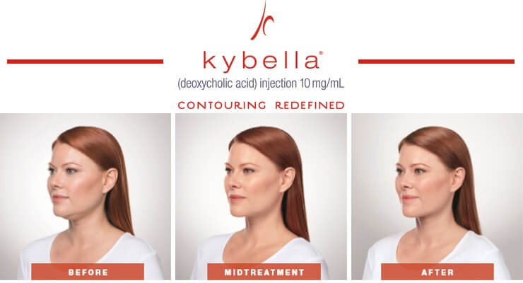 kybella-treatment-chart