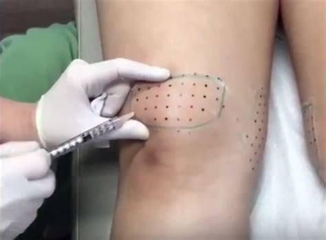 kybella-injection-knees
