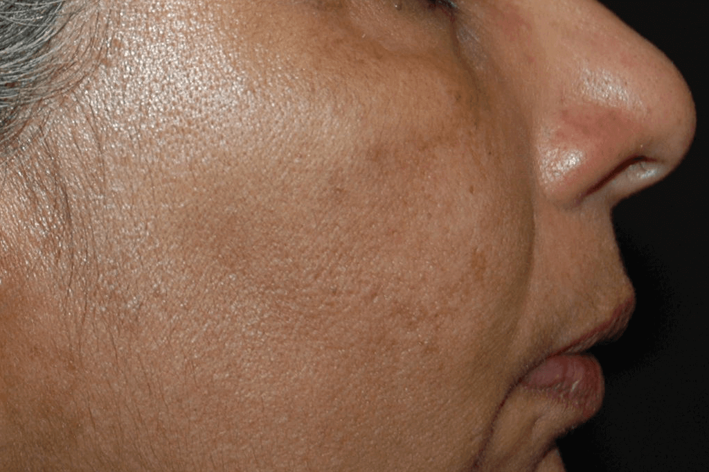 environ-pigmentation_after