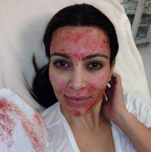 kim-kardashian-after-vampire-facial