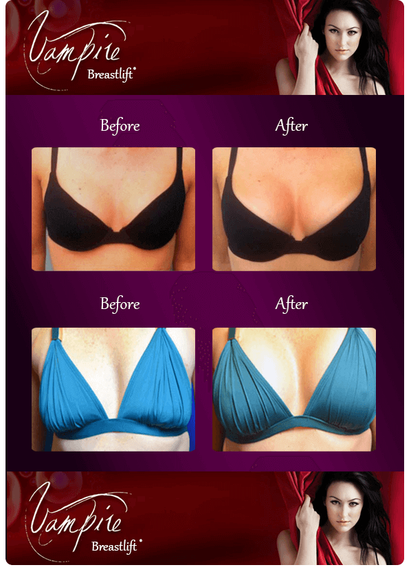 vampire-breast-lift-before-after