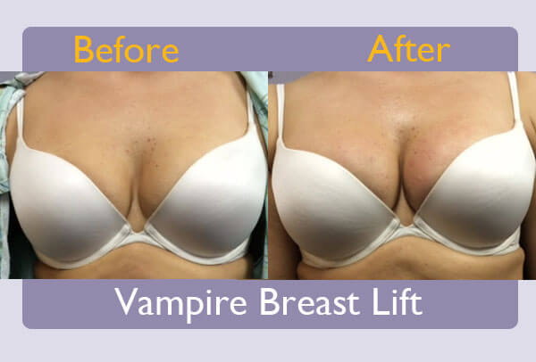 vampire-breast-lift-3-before-after-sarasota