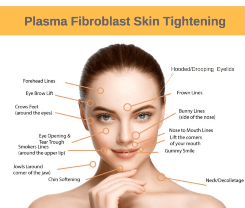 skin-tightening-areas